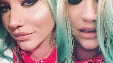 กลับขึ้นเวที! Kesha เตรียมโชว์ไว้รอแล้ว ในงาน Billboard Music Awards 2016