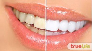 อยากฟันขาวต้องลอง! 2 สูตรยาสีฟันทำได้เอง ฟันขาวจัด ประหยัดงบสุดๆ