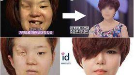ที่สุดของ Let Me In! Pyo Ga Hee สาวเกาหลีครึ่งหน้า กับการศัลยกรรมเปลี่ยนชีวิต!