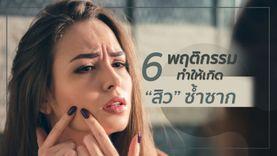 อย่าเลื่อนผ่าน! 6 พฤติกรรมชิลๆ ทำให้เกิด สิว ซ้ำซาก เลิกได้สิวหายเกลี้ยง!